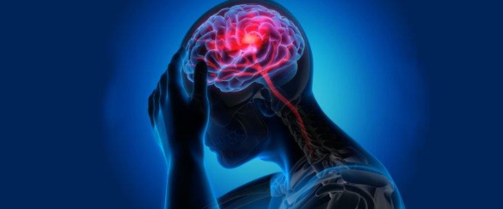 Неврорадиология medipro