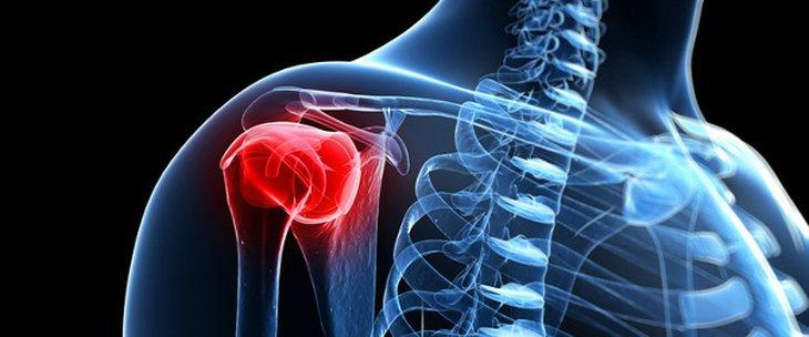 Хирургията на лакътя и рамото
