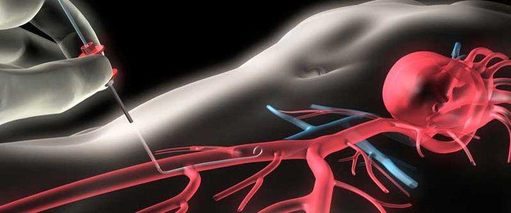 интервенционална кардиология
