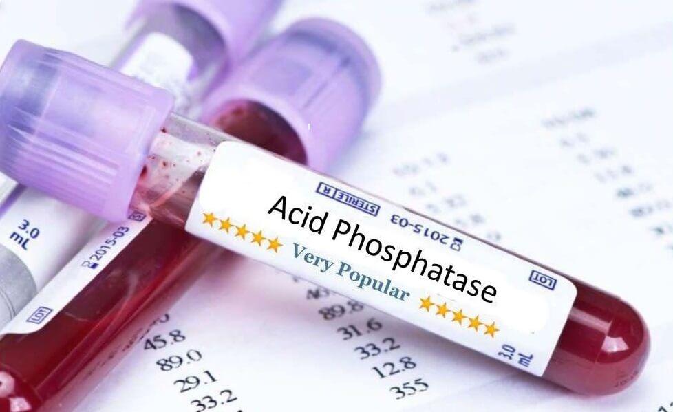 Кисела Фосфатаза (Acid Phosphatase) медипро