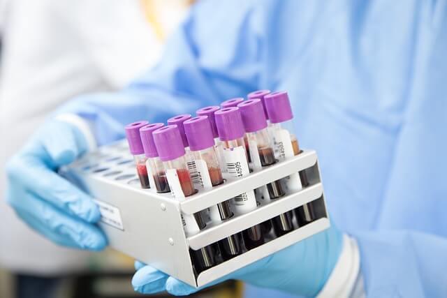 Определяне на кръвна група от системата АВО и Rh D антиген медипро