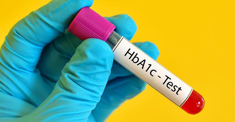 Гликиран хемоглобин (Hb A1C) медипро