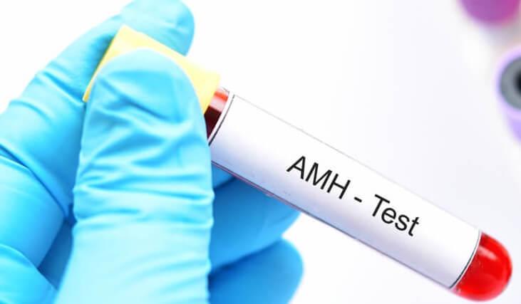 hormon AMH_medipro