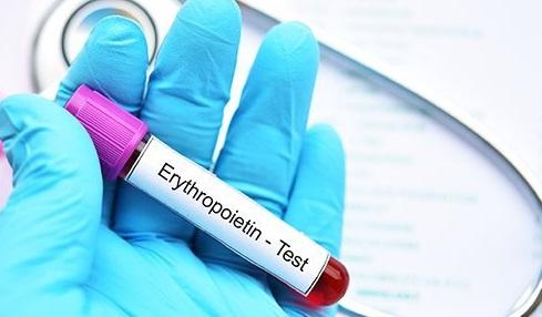 hormon erythropoietin_medipro