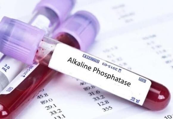 Алкална фосфатаза (Alkaline Phosphatase) медипро