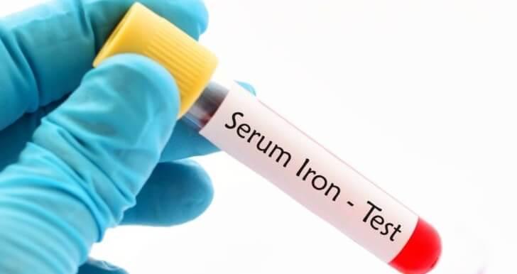 Желязо (Iron in Serum) медипро