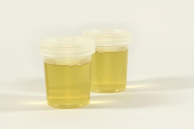 Калий в диуреза (Potassium in 24h Urine) медипро