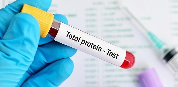 Общ белтък (Total protein) медипро